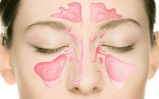 Основные симптомы и особенности лечения гиперпластического гайморита