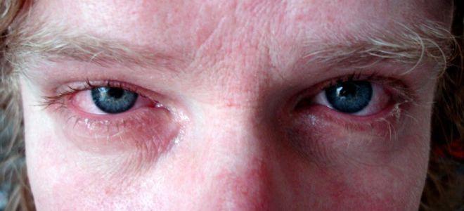 Возникновение и лечение аллергического ринита