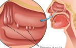 Полипозный гайморит: лечение, симптомы и причины