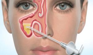 Методы лечения верхнечелюстного синусита