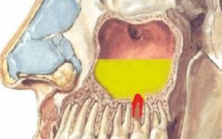 Верхнечелюстной синусит (одонтогенный гайморит): причины и лечение