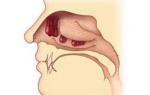 Полипозный и кистозный синусит: лечение, причины и симптомы