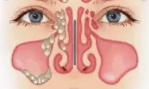 Грибковый гайморит: причины, симптомы и грамотное лечение заболевания