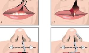 Кистозный гайморит: симптомы и лечение