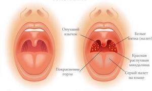 Тонзиллит – заразен или нет, как передается заболевание?