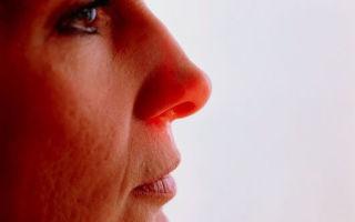 Основные симптомы такого заболевания как ринит
