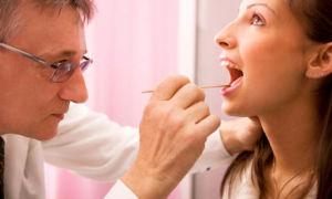 Хронический тонзиллит: причины, симптомы, лечение