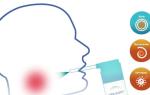 Спреи для горла при ангине: различные препараты