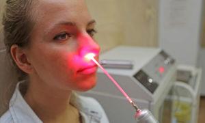 Лазерная терапия: возможности и побочные эффекты