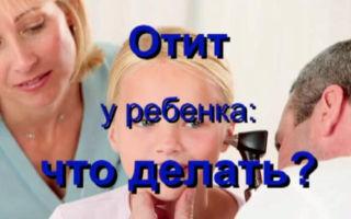Отит у ребенка: что делать?