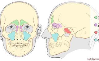 Острая и хроническая форма верхнечелюстного синусита