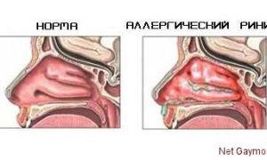 Основные методы лечения вазомоторного ринита