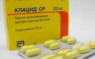 Лечение гайморита препаратом Клацид