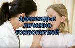Как лечить аденоиды гомеопатией