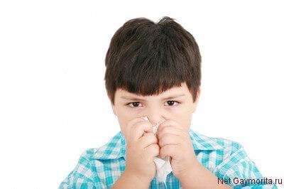 аллергический ринит симптомы у детей