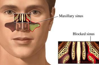 Наглядная схема гноя в пазухе носа