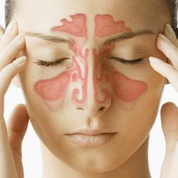 Как лечить аллергический гайморит народными средствами и препаратами