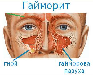 Последствия гайморита у взрослых, осложнения на зрение. Осложнения после гайморита: болят глаза и голова
