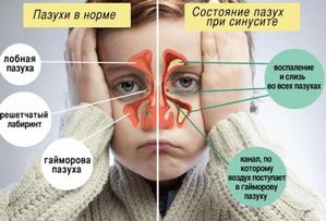 Диагностика гайморита у детей