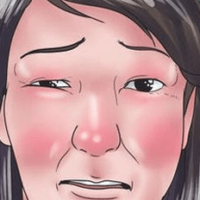 Чем снять отек слизистой носа при гайморите