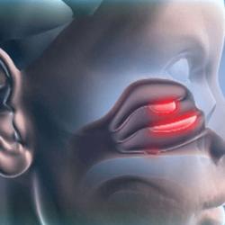 Что такое катаральный гайморит: симптомы и лечение у взрослых и детей