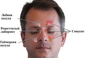как определить гайморит диагностика
