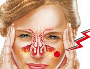 риногенный гайморит - хронический