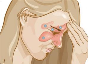 Гайморит причины и симптомы