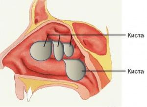 Кистозный синусит