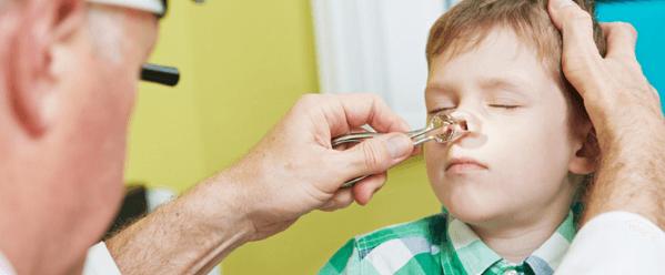 Медикаментозное лечения синусита