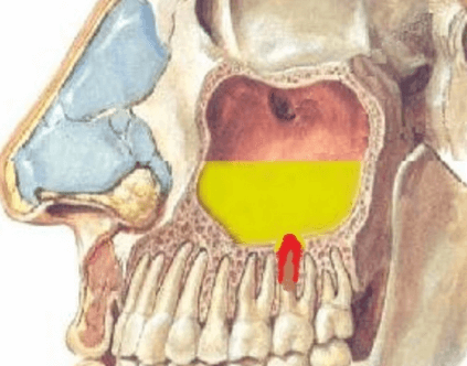 Одонтогенный гайморит