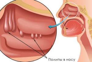 Полипозный гайморит