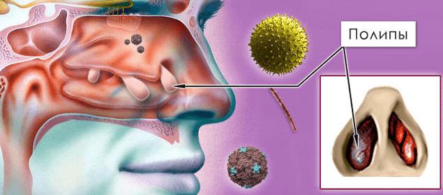 методы диагностика заболевания