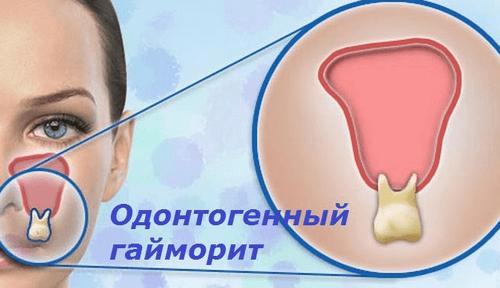 одонтогенный гайморит симптомы