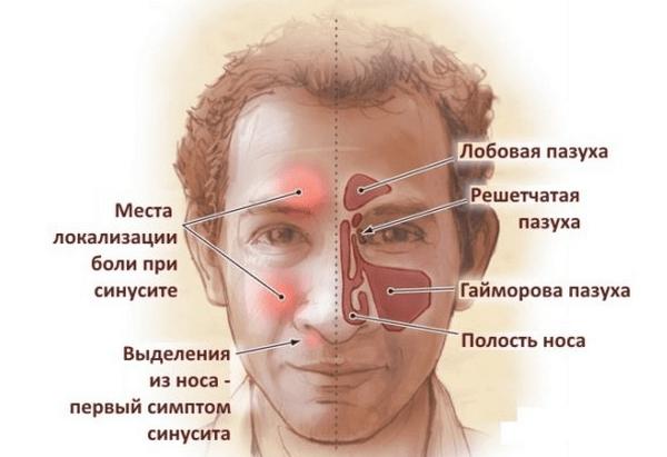 острый синусит симптомы