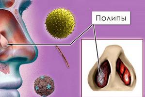 полипозный синусит лечение