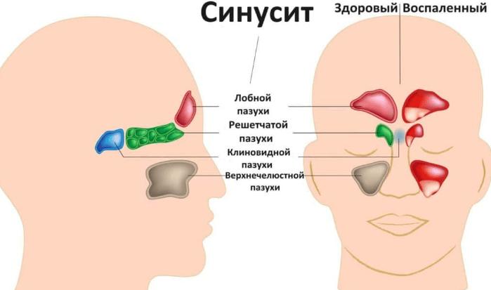 верхнечелюстной синусит хронический
