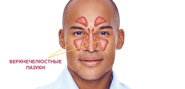 верхнечелюстной синусит симптомы