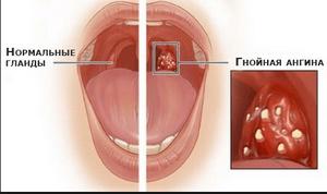 Гнойная ангина - лечение