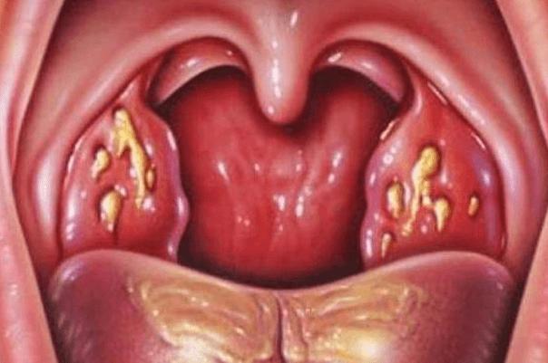 Гнойный тонзиллит - лечение