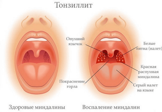 Заразен ли тонзиллит