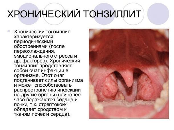 хронический тонзиллит