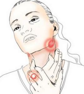 Диагностика катаральной ангины